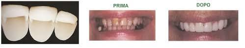 odontoiatriaconservativa3