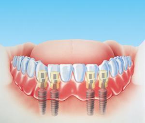 odontoiatria implantologia